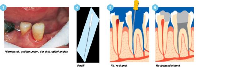 tandpine efter rodbehandling