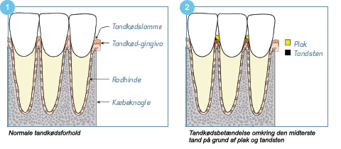 betændelse i tandkød