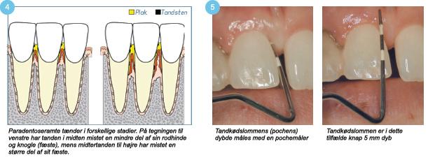 betændelse i tandkødslomme